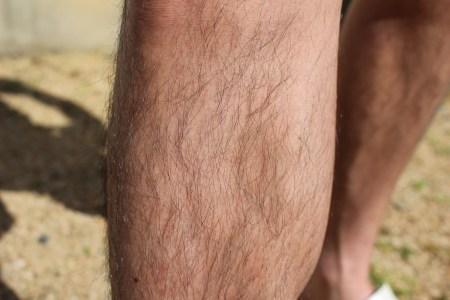 AGA治療薬の服用で体毛が濃くなってしまう理由と予防法