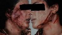 خطير: زوج يشرمل زوجته و يفر هاربا تاركا الضحية مغمى عليها وسط الدماء (+صورة)