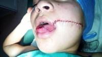 +صور حصرية: أكادير24 تنفرذ بنشر تفاصيل مجزرة عامل بمجزرة الذي كاد يقطع لسان فتاة قاصر