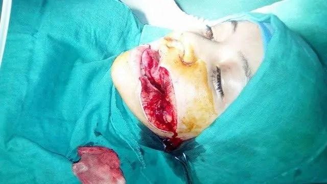 إنزكان: جزار يشطر وجه فتاة بالسكين ويحاول قطع لسانها