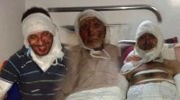 ضحايا حريق إفني يطالبون بمد يد المساعدة العاجلة