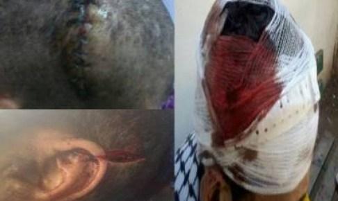 أمن أكادير يدخل على خط قضية الاعتداء على شابين أمام ملهى ليلي