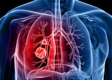 دراسة: الدهون قد تؤدي إلى الإصابة بسرطان الرئة
