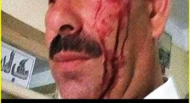 حادث الإعتداء على مدير مؤسسة تعليمية بأكادير يواصل المزيد من التفاعل.