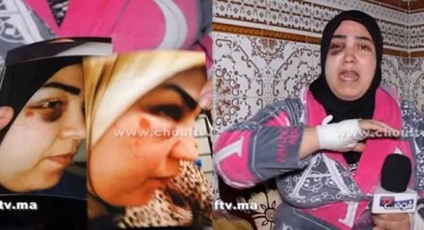"""+2فيديو: """"خديجة"""" ضحية الاعتداء الشنيع بقلب الدشيرة تحكي تفاصيل الحادث المأساوي، وتستنكر بشدة عدم تدخل أي أحد لإنقادها."""