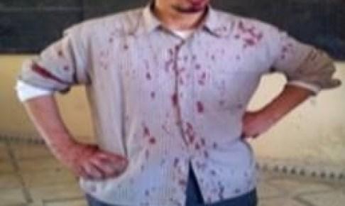"""خطير:أستاذ ينجو بأعجوبة من """"القتل"""" على يد مختل عقليا حاول ذبحه بسكين داخل القسم"""