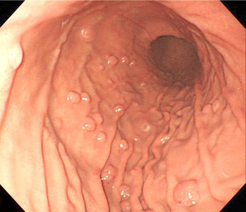 What To Do About Gastric Polyps « Dallas Reflux Ihde