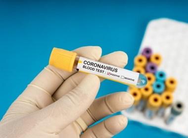 11-04-20 coronavirus-3