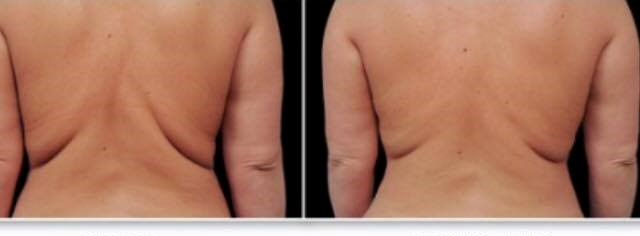 Fat Freezing Back Results