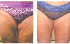 Fat Feezing Results on Tights