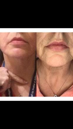 Wee jowl lift using caci wands and bit of radio frequency using 3d lipo to smooth out the skin ... Fabulous together ❤️