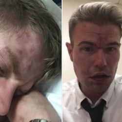 酷新闻:伦敦火车传恐同攻击 男同志情侣鼻青脸肿