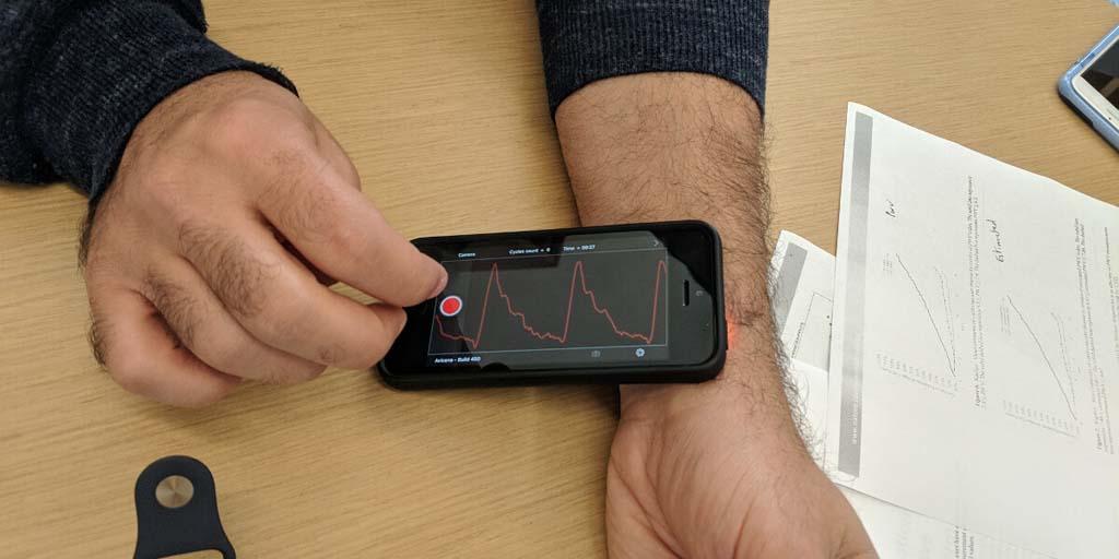 Using AI to detect heart disease