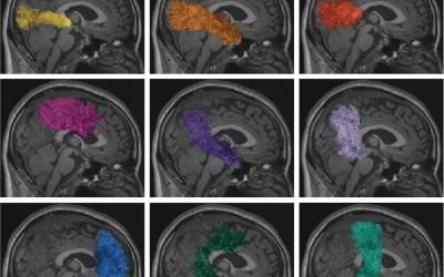 Cloud Computing Expands Brain Sciences