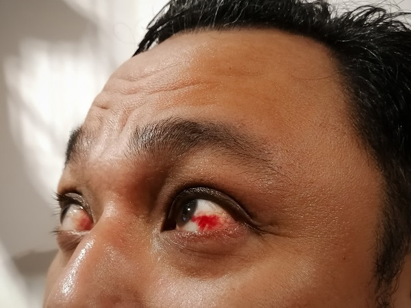 Serious Eye Symptoms To Look Out For
