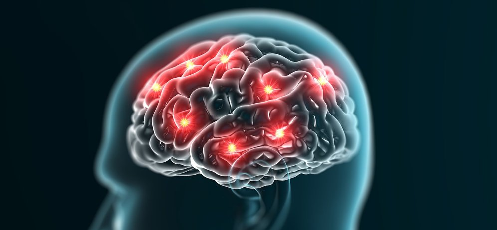 The brain is the central area for working memory
