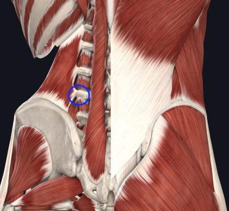 L4肋骨突起