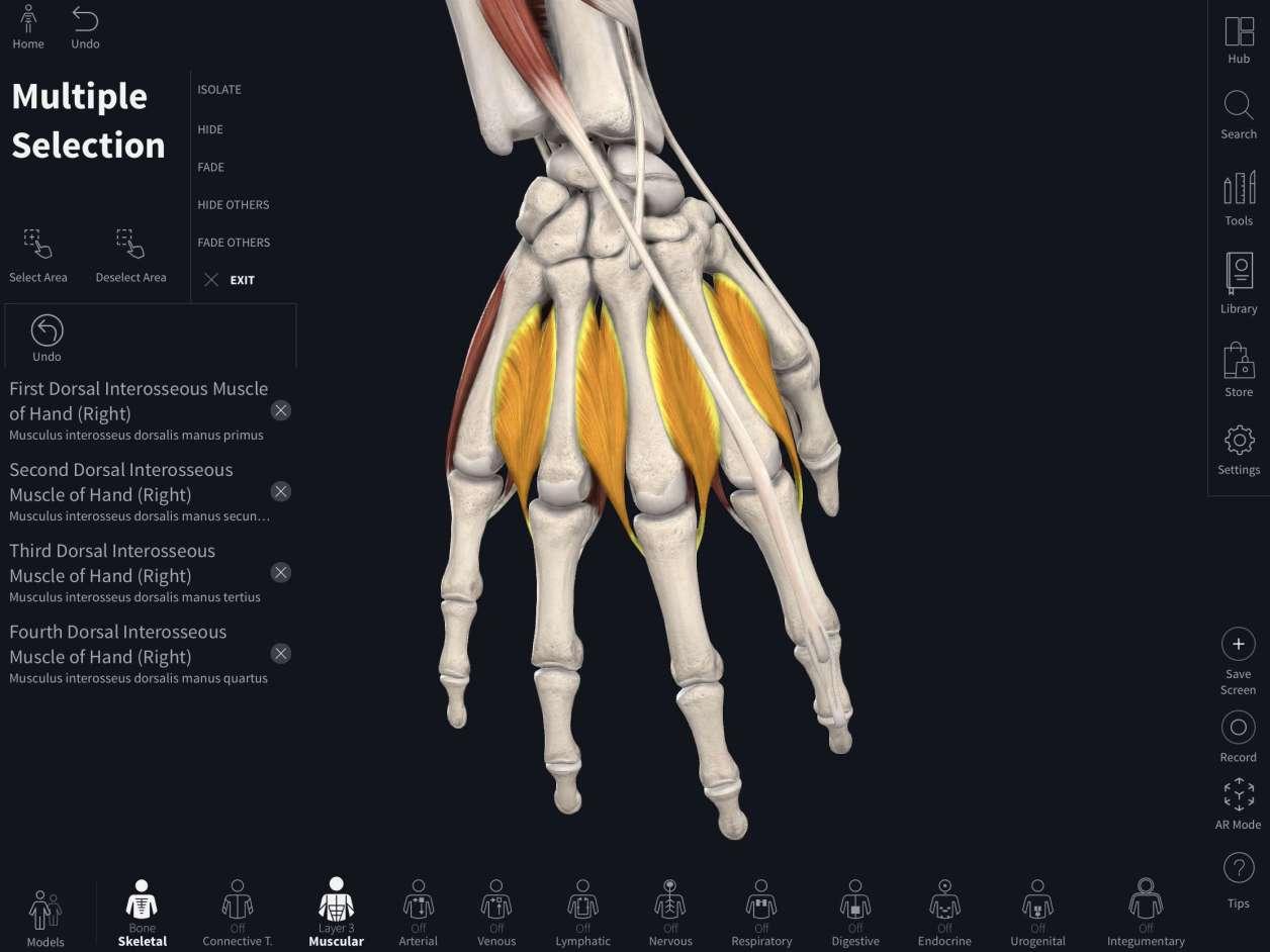 手の内在筋