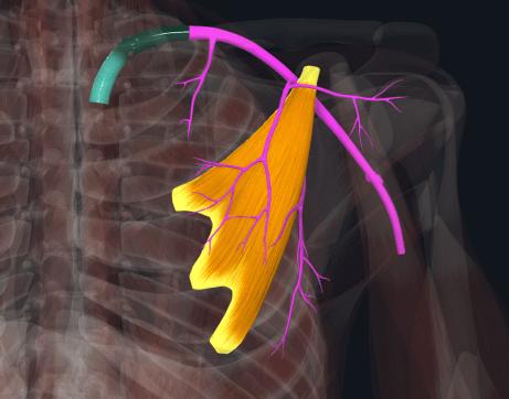 小胸筋による動脈の狭窄