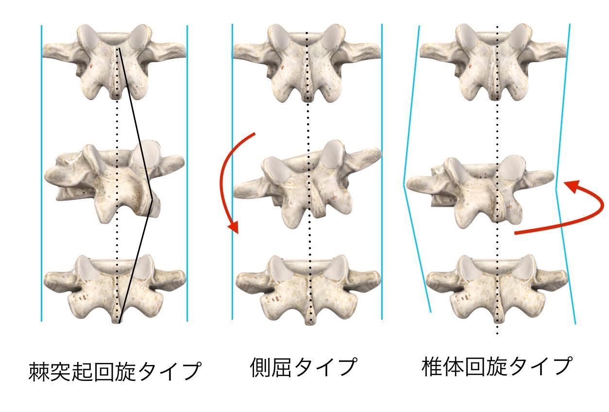 椎骨の変位