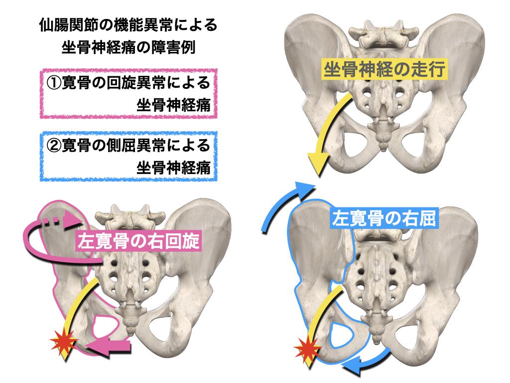 坐骨神経の障害の例