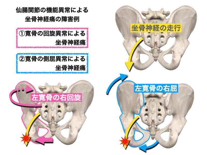 仙腸関節の変位と坐骨神経障害