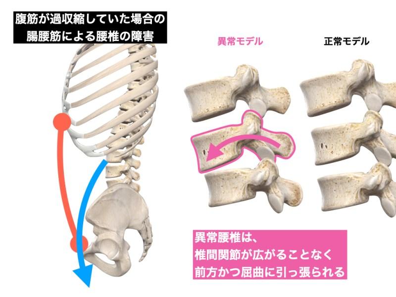 腰椎の変位 腹筋と腸腰筋の異常な緊張
