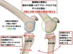 膝の内側と外側の関節構造学