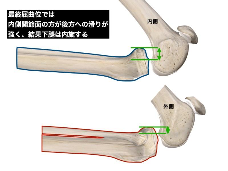 内側関節面の長さによる回旋