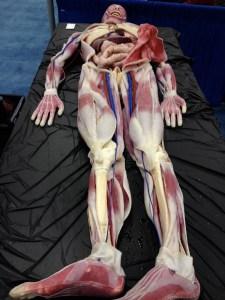 SynDaver Cadaver