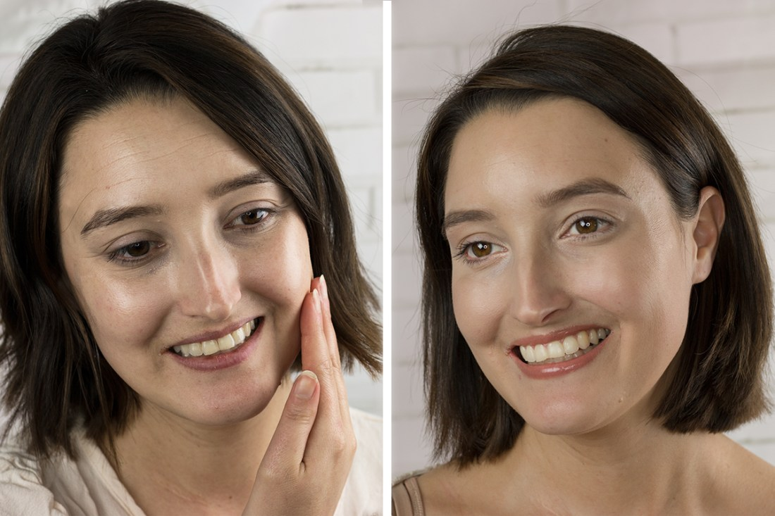 Before/After Botox Injections from CosmetiCare | A Good Hue