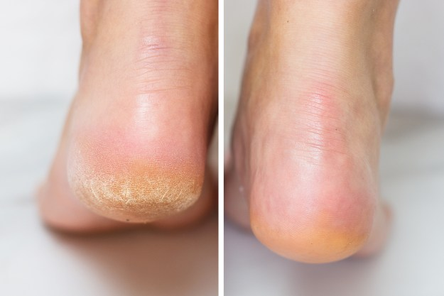 Kerasal Intensive Foot Repair Before & After | A Good Hue