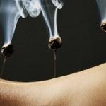 agopuntura e moxa