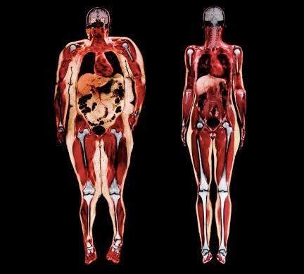 come agopuntura laser funziona per perdere peso