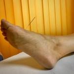 agopuntura per disturbi digestivi