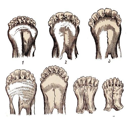 Что нужно знать о разведении овец. Определение возраста по зубам Как можно отличить возраст овцы по зубам