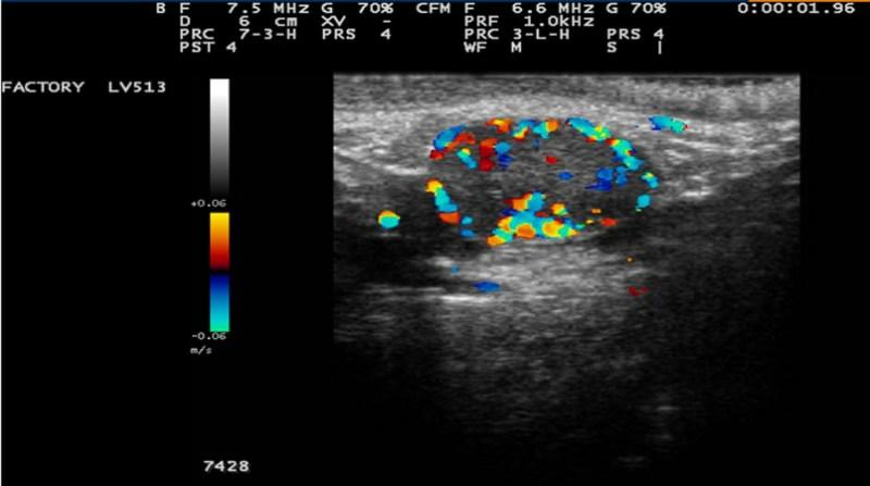 ultrassom doppler embrapa