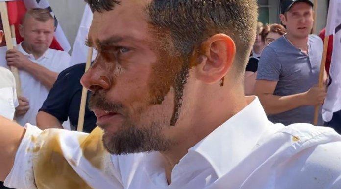 Michał Kołodziejczak, lider AGROunii poparzony gazem podczas protestu