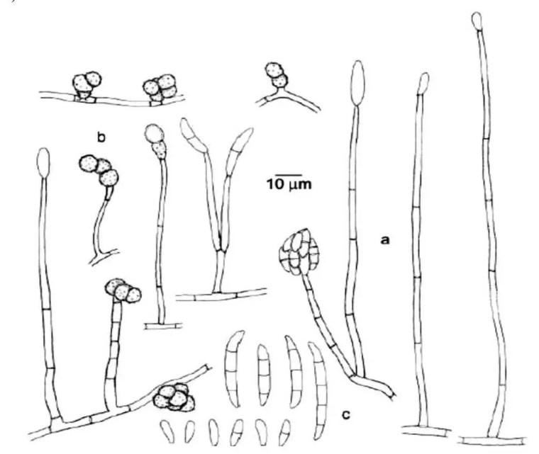 Figure 2: Caractères morphologiques de Fusarium solani : a : conidiophores avec monophialides ; b: chlamydospores ; c: micro et macroconidies (Debourgogne, 2013).