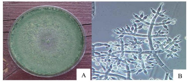 Figure 1 : Aspect macroscopique (A) et microscopique (B) de Trichoderma harzianum.