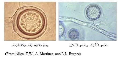 شكل رقم (2) عضو التأنيث وعضو التذكير للفطر بثيوم تحت المجهر