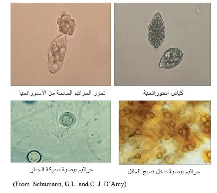 شكل رقم (1) الأكياس الأسبورانجية والجراثيم البيضية التي يكونها الفطر فيتوفثورا تحت المجهر.