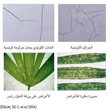 شكل رقم (2): الجراثيم الكونيدية للفطر Pseudocercospora rhapisicola وأعراض تبقع الأوراق على نخيل رابس Rhapis sp