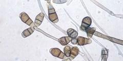 الأمراض المتسببة عن الفطر كرفيولاريا
