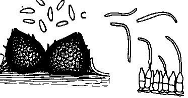 شكل رقم (1): الجراثيم الكونيدية التي يكونها الفطر Phomopsis