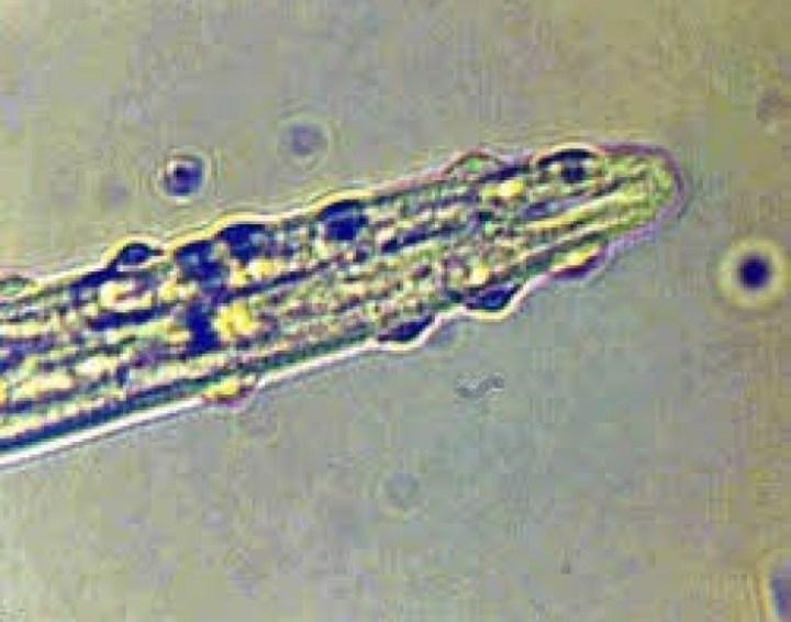Controle biológico dos nematoides das galhas