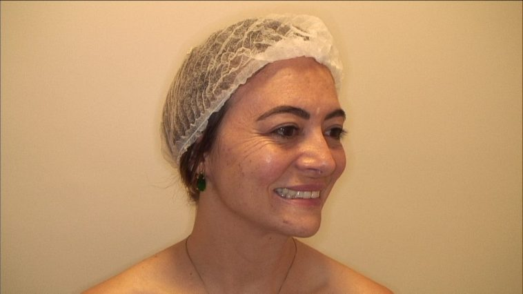 Por que aplicar Botox antes dos 30 anos?