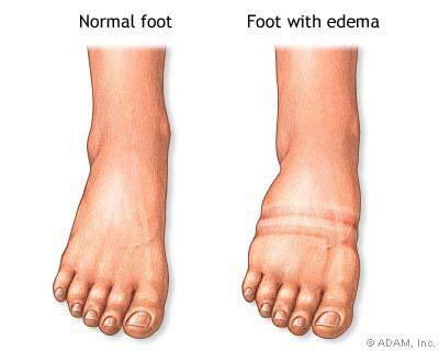 edema membros inferiores inchaço gravidez pré-eclâmpsia eclâmpsia toxemia