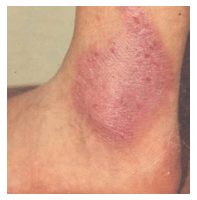 Pengobatan Neurodermatitis