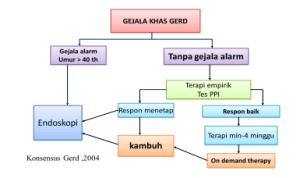Refluks Gastroesofageal : Gejala, Diagnosis dan Pengobatan 1
